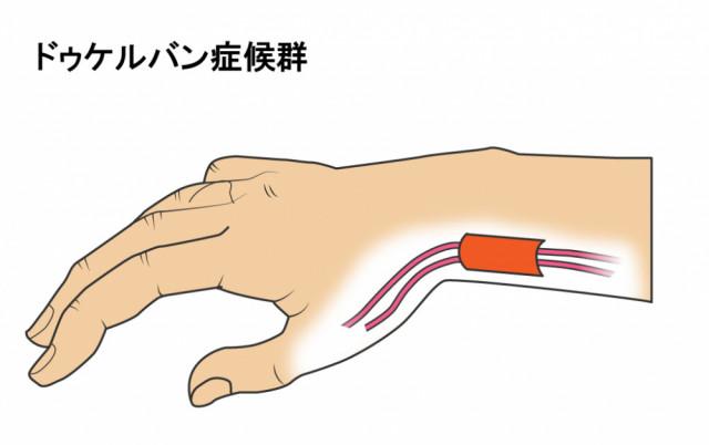 腱鞘炎とは?