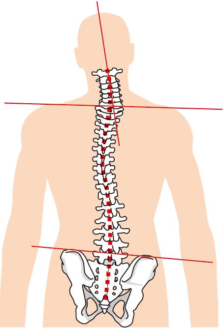 当院の腱鞘炎へのアプローチ