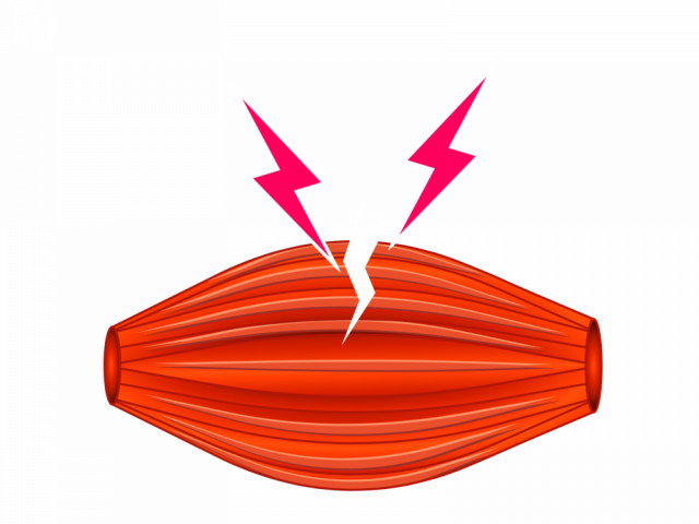 筋肉の断裂イラスト