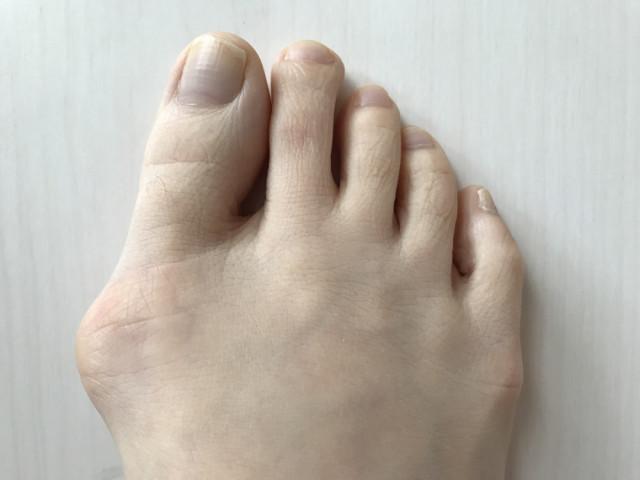 外反母趾の写真