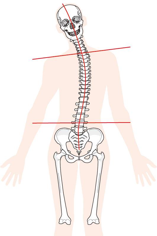 当院の頚椎症へのアプローチとは