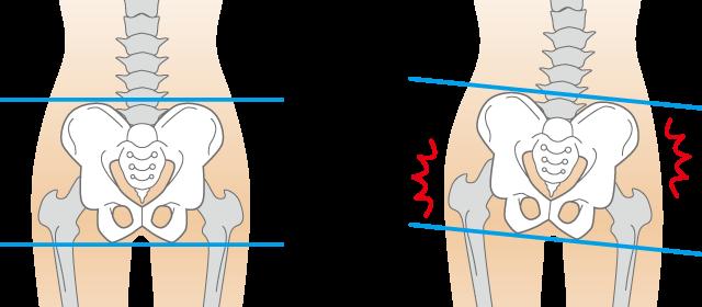 下肢の筋肉のイラスト